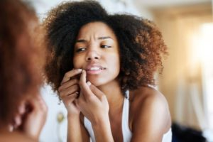5 Tips on Acne Prevention